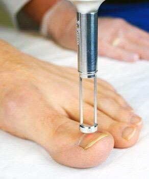 Ingrowing Toe Nail Removal - Primary Care Medicine - Irvine, CA ...